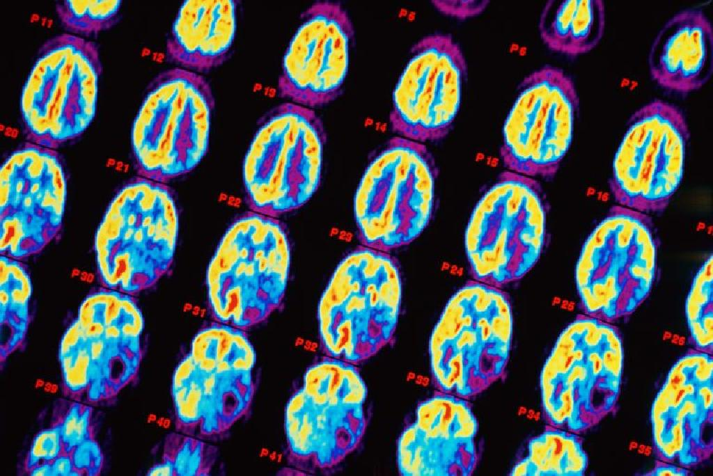 Tumoare pe creier– ce este, cate sunt si care sunt simptomele unui cancer cerebral? - BIOMED SCAN
