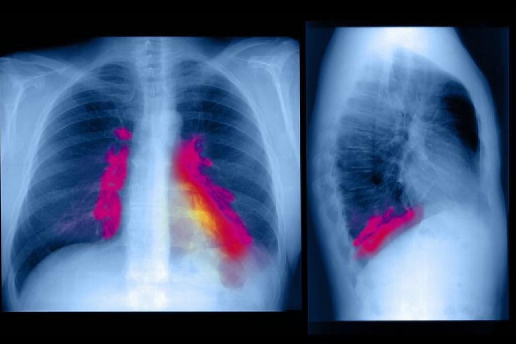 Embolie pulmonaire: symptômes, causes, traitement et plus