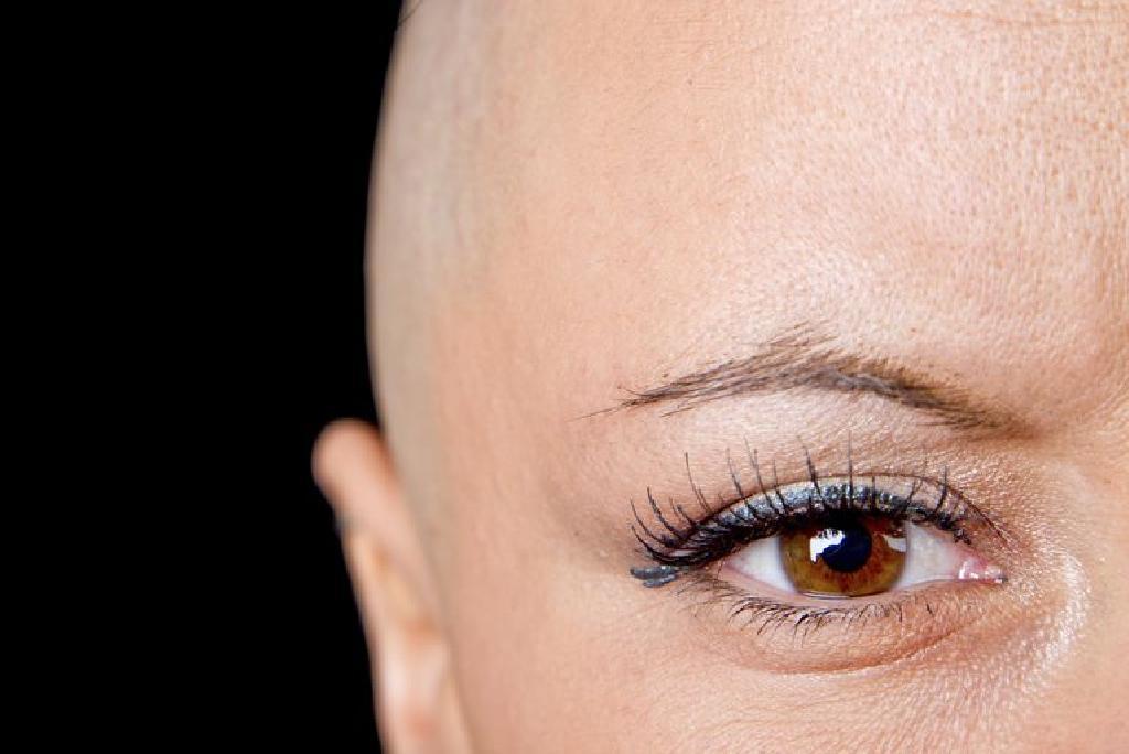Cresterea parului dupa chimioterapie