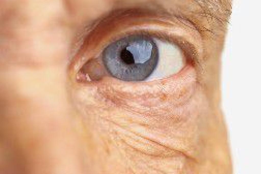 pierderea în greutate și problemele oculare)