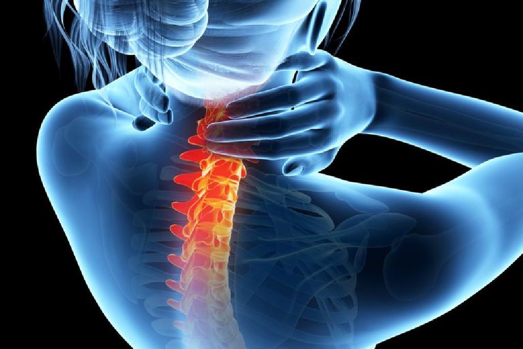 artroza articulațiilor intervertebrale ale coloanei vertebrale