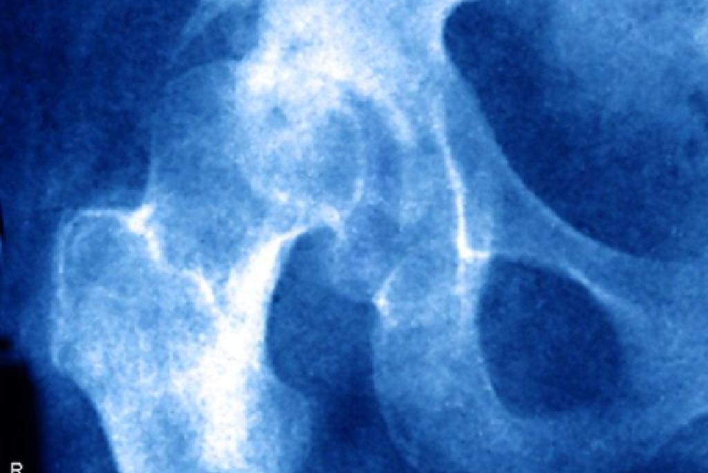 simptomele tratamentului subluxației șoldului
