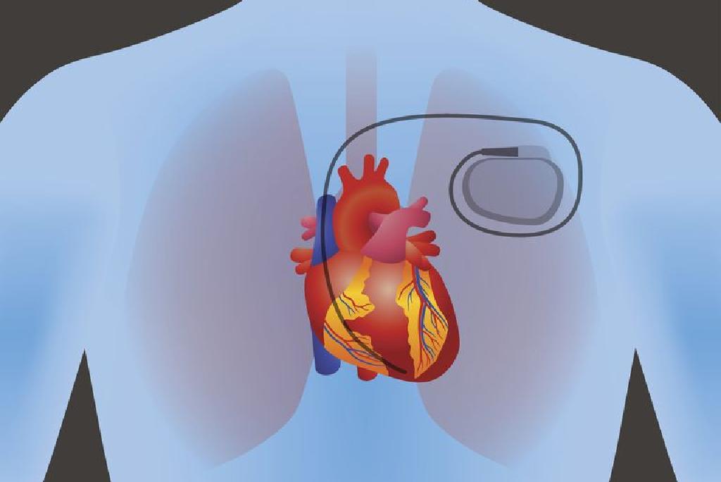 aha širdies sveikata