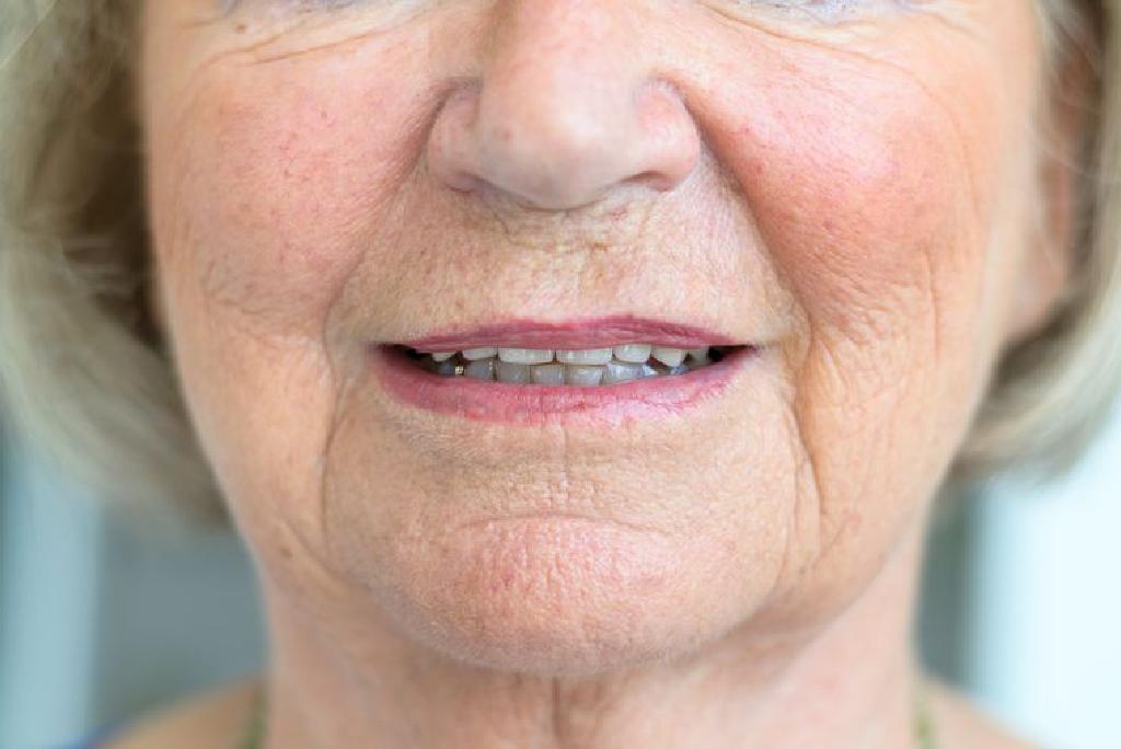 pierderea în greutate flushing facial)