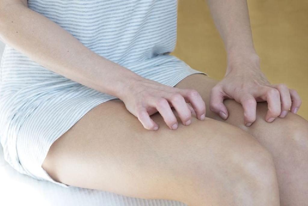 ce pot face pentru picioarele mâncărime