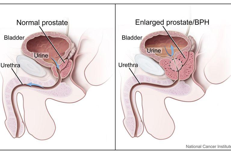 Nyomás prosztata sérült Krónikus prosztatitis asztala