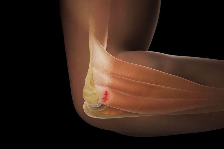 Cum să opriți durerea cotului în timpul ridicării - Larson sport și Ortopedie | Yakaranda
