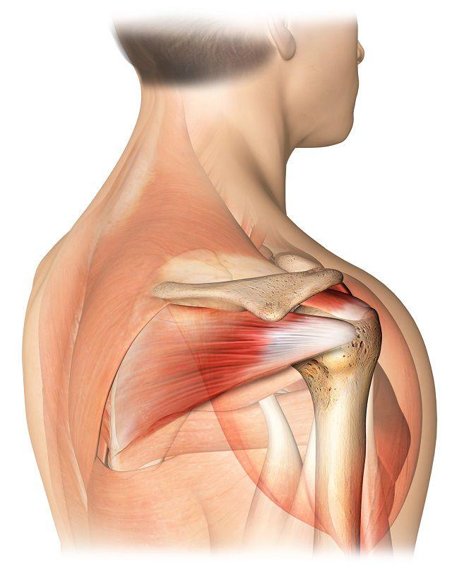 deteriorarea manșetei rotative a articulației umărului)