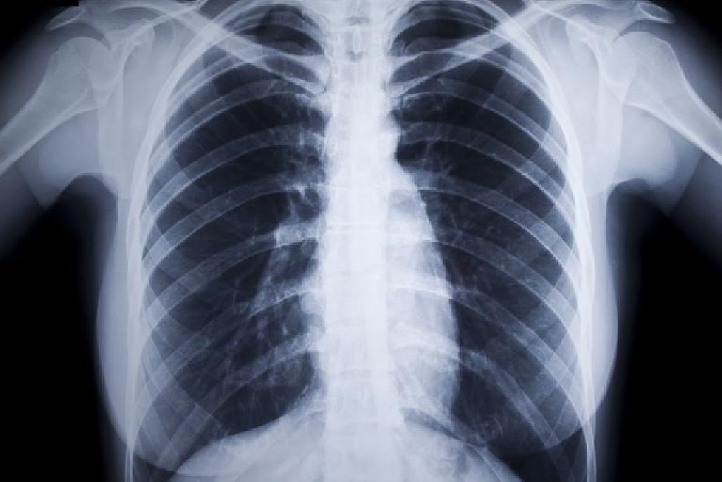 Poliartrita Reumatoida: Simptome • Poze • Analize • Tratament - editura-geto-dacii.ro